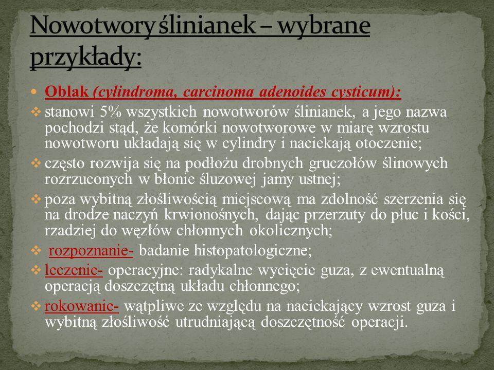 Nowotwory ślinianek – wybrane przykłady: