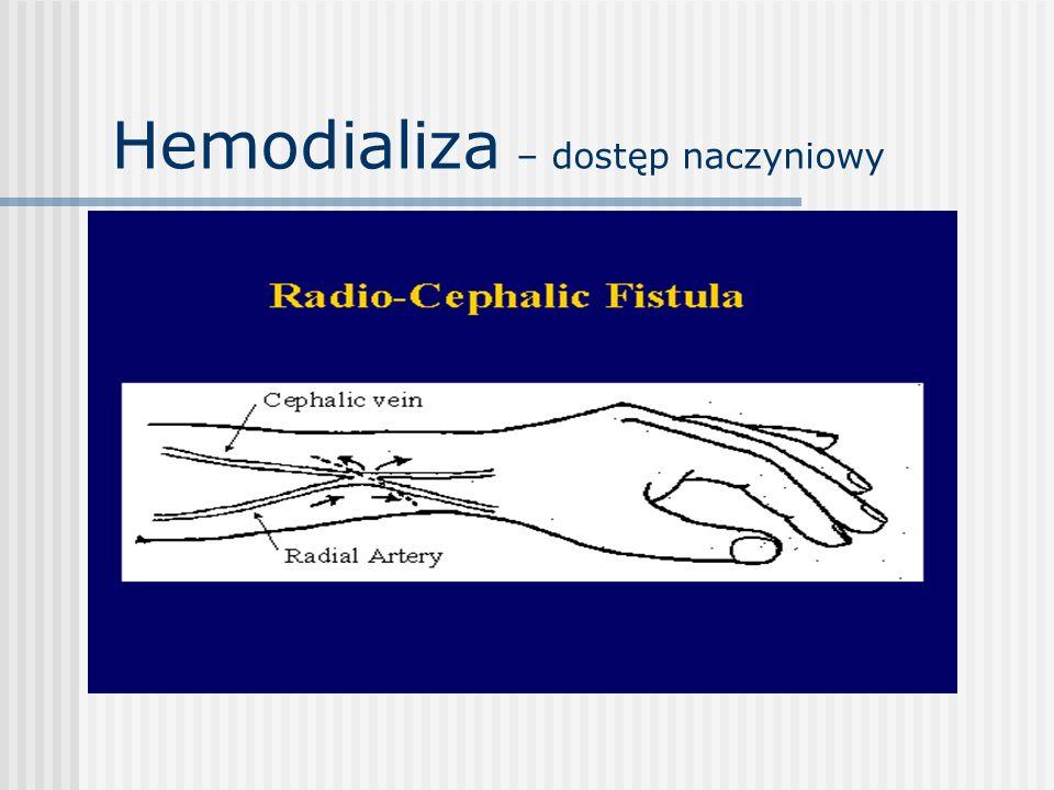 Hemodializa – dostęp naczyniowy