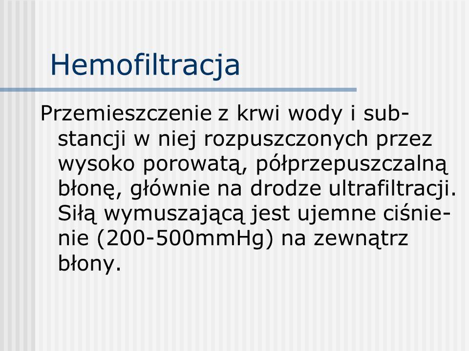 Hemofiltracja