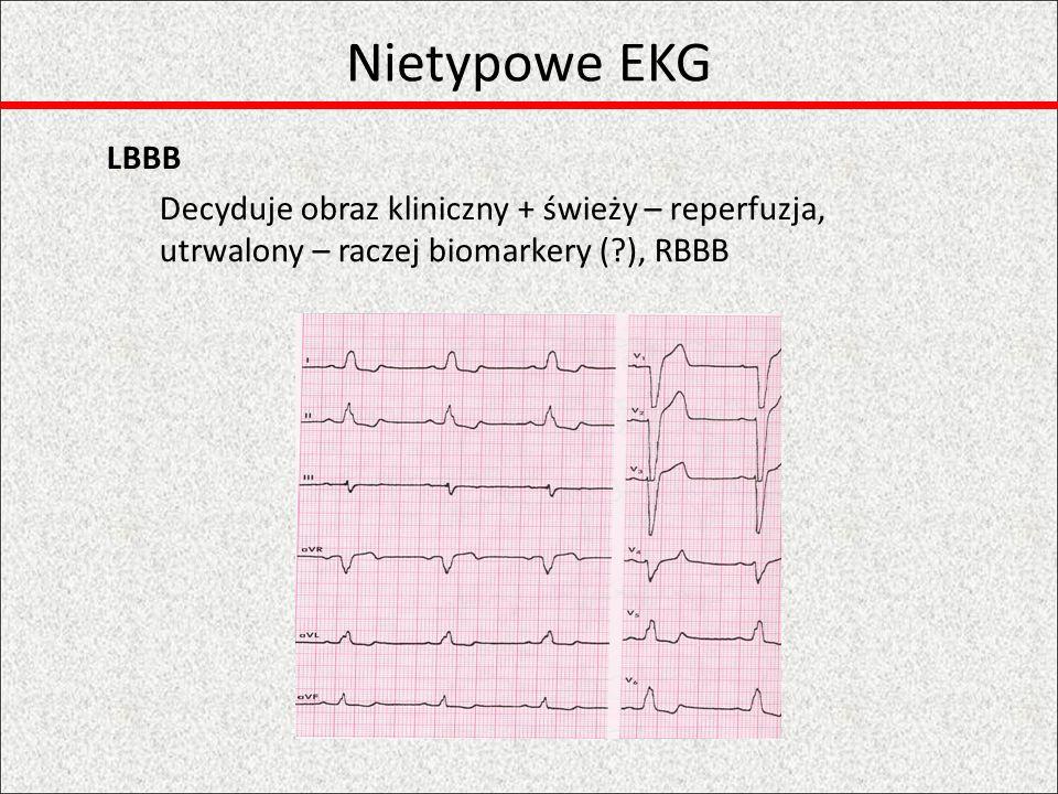 Nietypowe EKG LBBB.