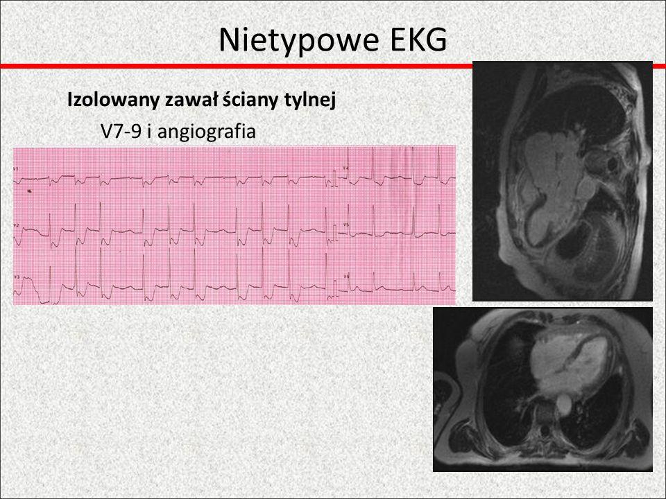 Izolowany zawał ściany tylnej V7-9 i angiografia