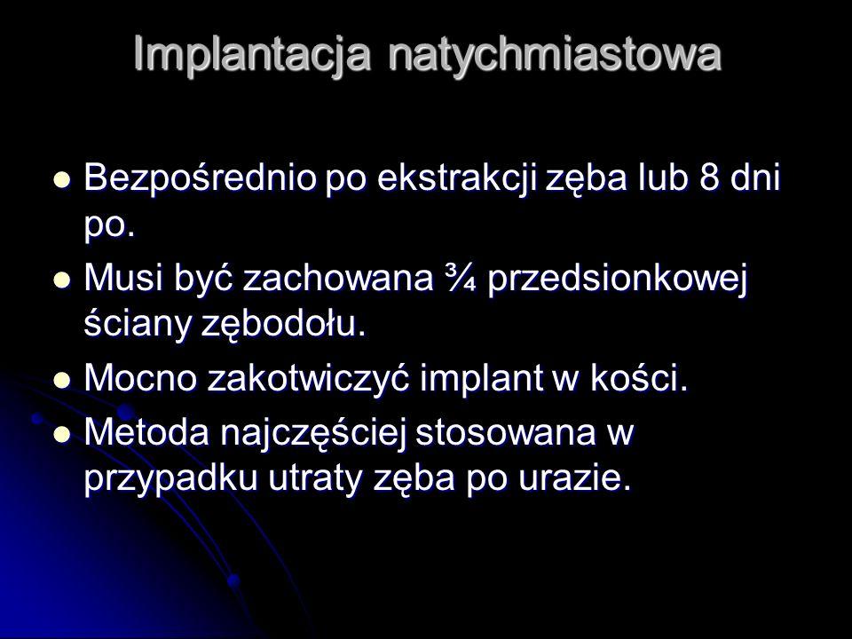 Implantacja natychmiastowa