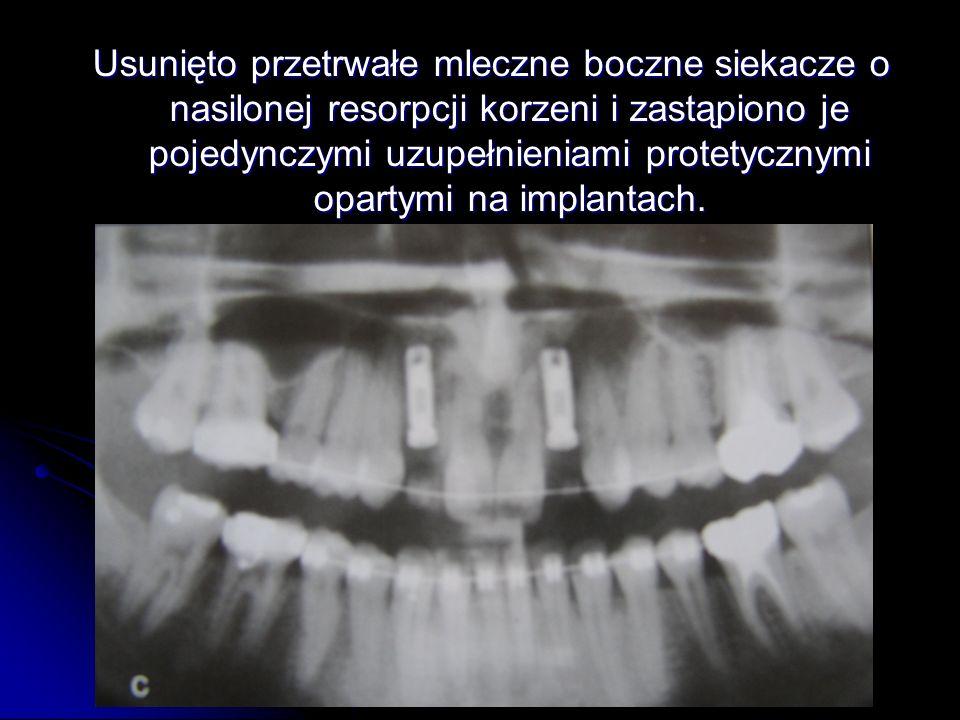 Usunięto przetrwałe mleczne boczne siekacze o nasilonej resorpcji korzeni i zastąpiono je pojedynczymi uzupełnieniami protetycznymi opartymi na implantach.