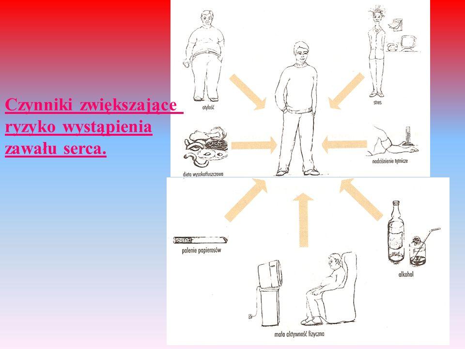 Czynniki zwiększające ryzyko wystąpienia zawału serca.