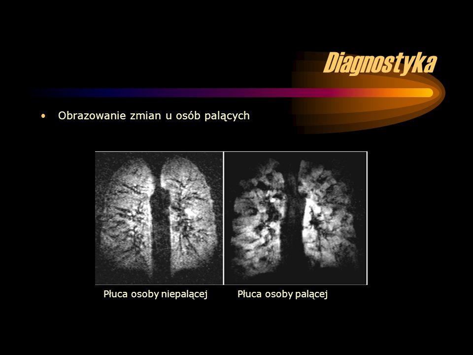 Diagnostyka Obrazowanie zmian u osób palących Płuca osoby niepalącej