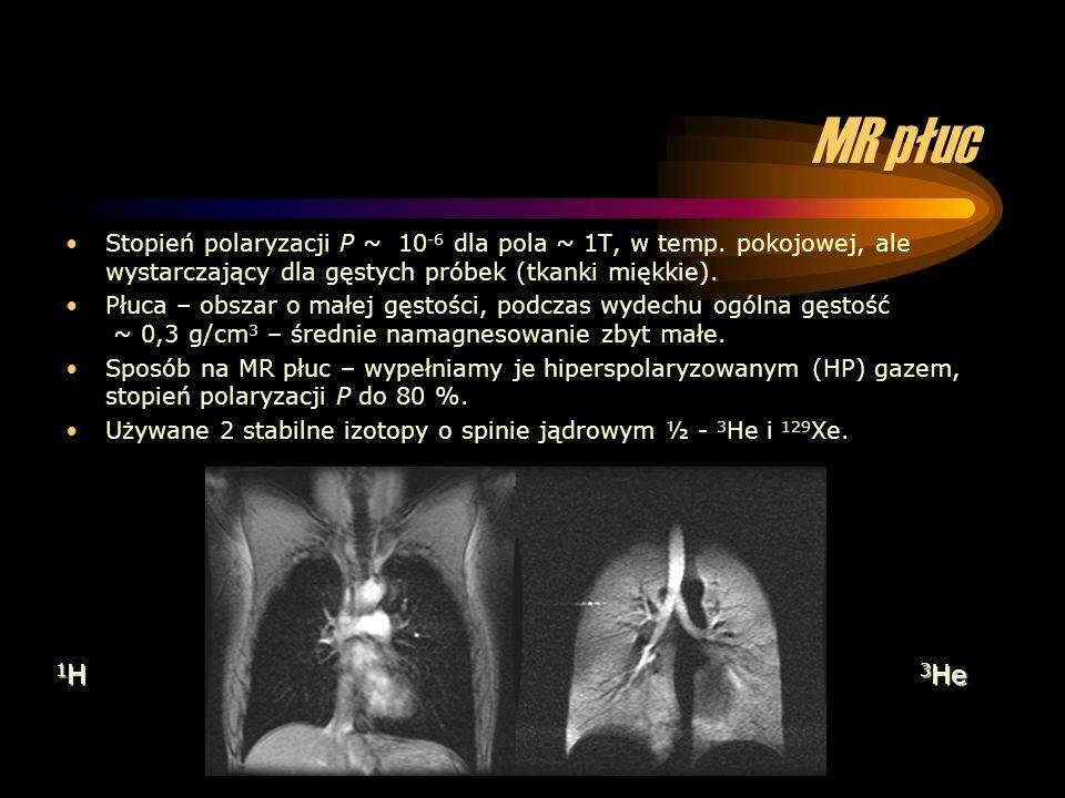 MR płuc Stopień polaryzacji P ~ 10-6 dla pola ~ 1T, w temp. pokojowej, ale wystarczający dla gęstych próbek (tkanki miękkie).