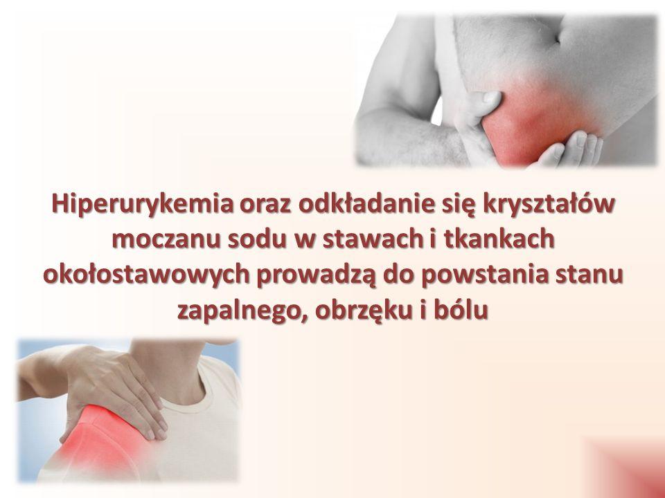 Hiperurykemia oraz odkładanie się kryształów moczanu sodu w stawach i tkankach okołostawowych prowadzą do powstania stanu zapalnego, obrzęku i bólu