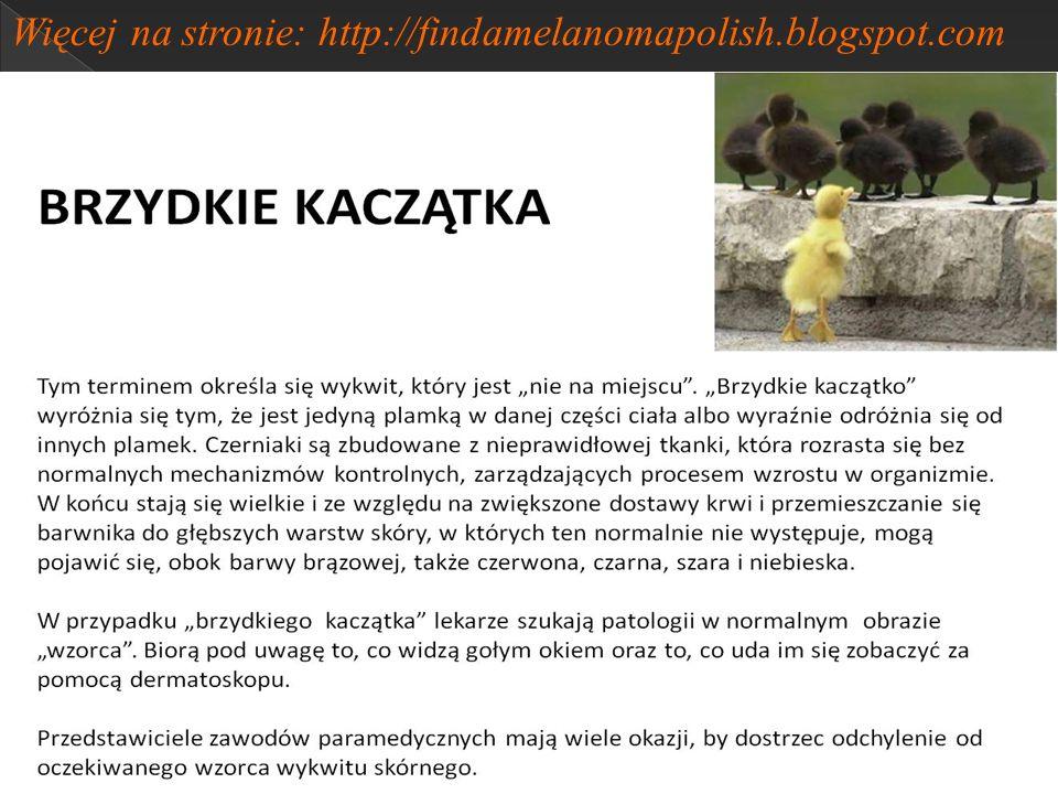Więcej na stronie: http://findamelanomapolish.blogspot.com