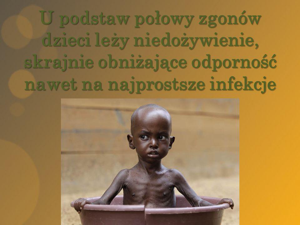 U podstaw połowy zgonów dzieci leży niedożywienie, skrajnie obniżające odporność nawet na najprostsze infekcje