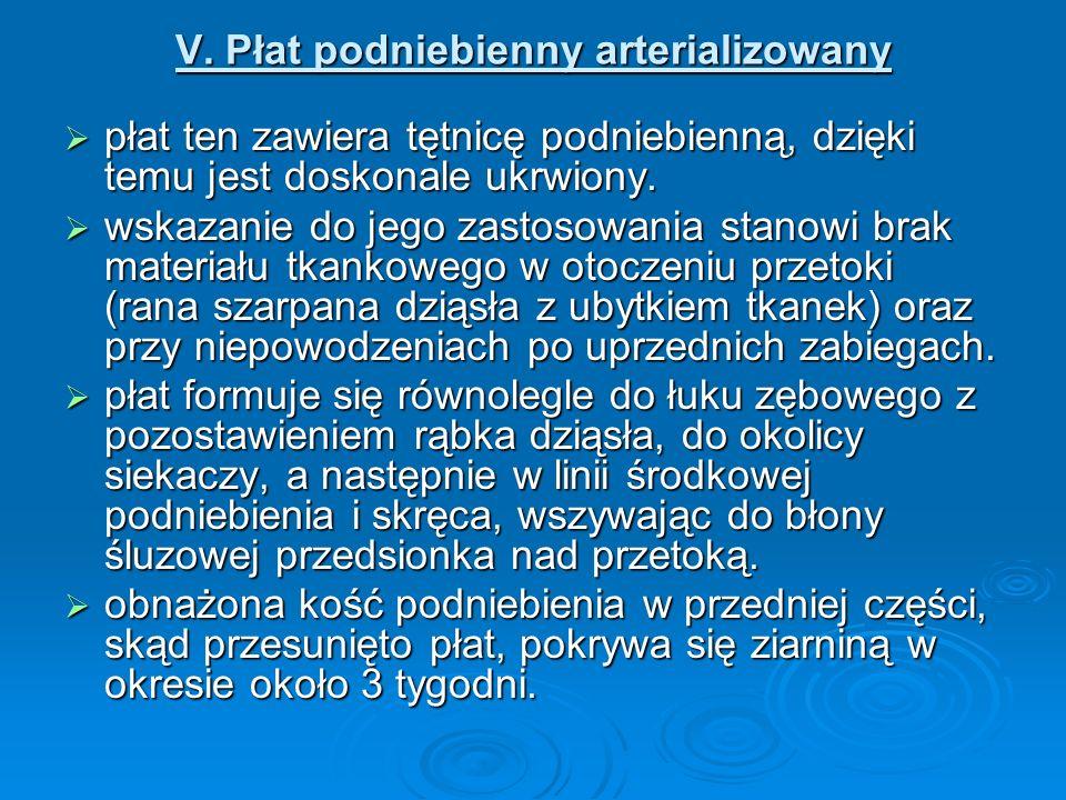 V. Płat podniebienny arterializowany