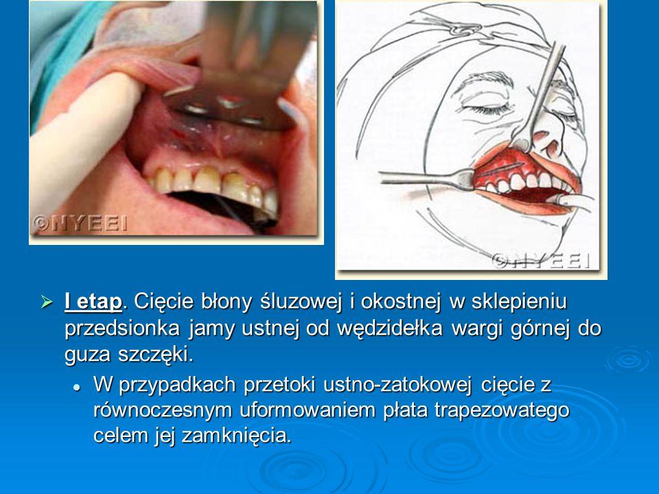 I etap. Cięcie błony śluzowej i okostnej w sklepieniu przedsionka jamy ustnej od wędzidełka wargi górnej do guza szczęki.