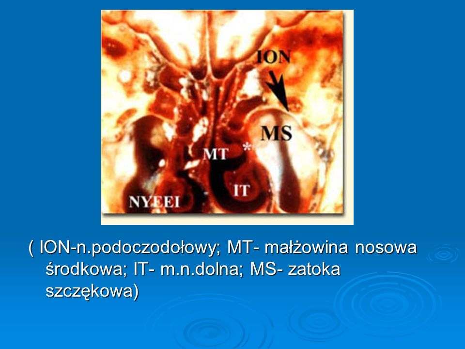 ( ION-n. podoczodołowy; MT- małżowina nosowa środkowa; IT- m. n