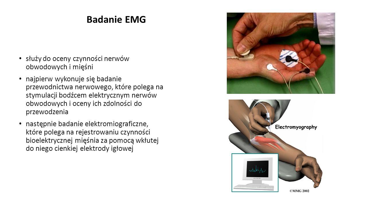 Badanie EMG służy do oceny czynności nerwów obwodowych i mięśni