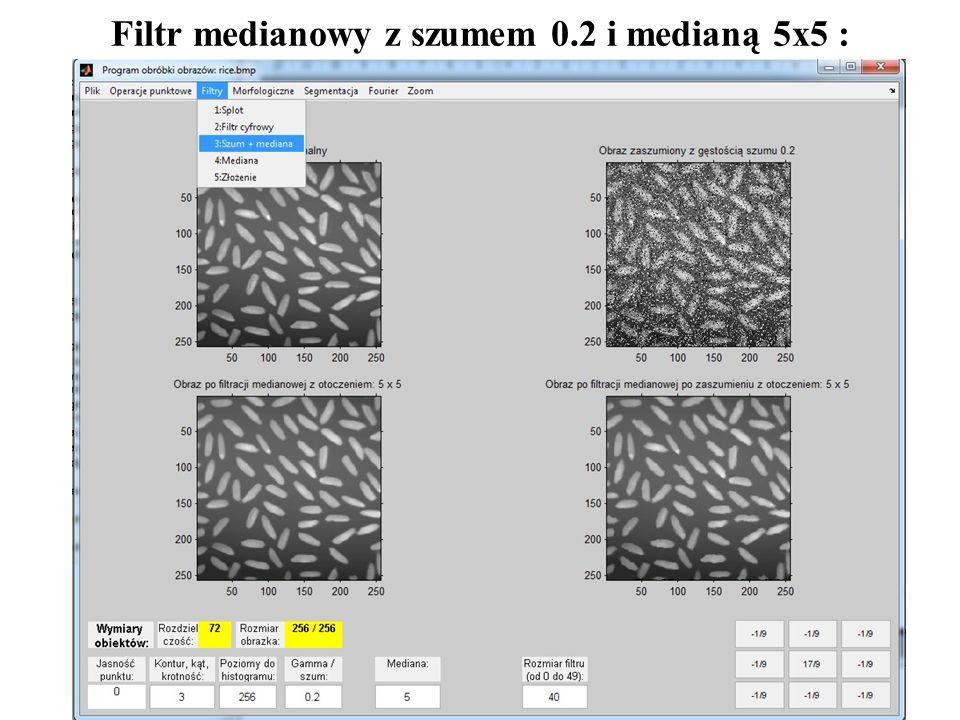 Filtr medianowy z szumem 0.2 i medianą 5x5 :