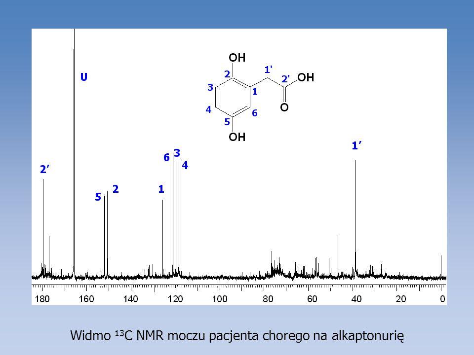 Widmo 13C NMR moczu pacjenta chorego na alkaptonurię