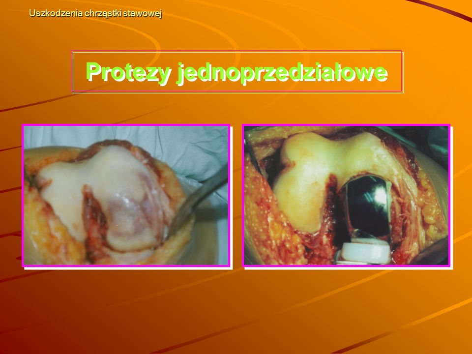 Uszkodzenia chrząstki stawowej