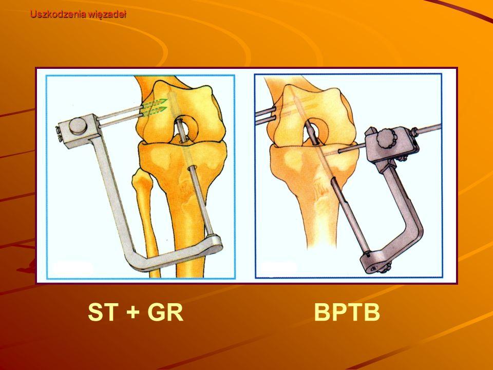 Uszkodzenia więzadeł ST + GR BPTB