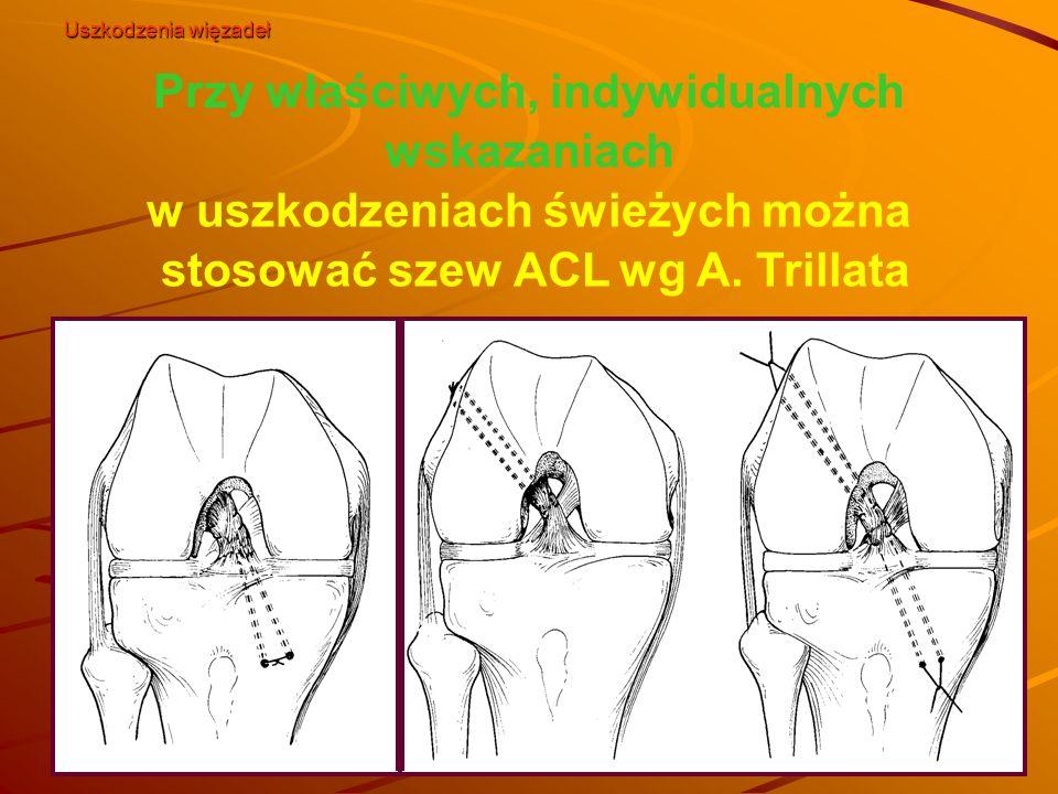 Uszkodzenia więzadeł Przy właściwych, indywidualnych wskazaniach w uszkodzeniach świeżych można stosować szew ACL wg A.