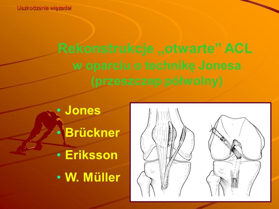 """Uszkodzenia więzadeł Rekonstrukcje """"otwarte ACL w oparciu o technikę Jonesa (przeszczep półwolny)"""