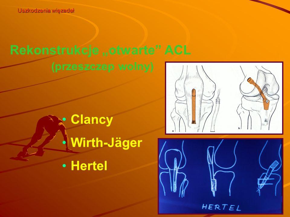 """Rekonstrukcje """"otwarte ACL (przeszczep wolny)"""