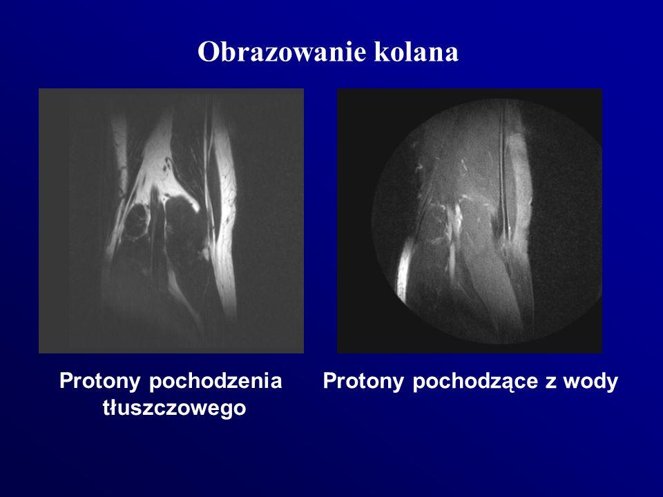 Obrazowanie kolana Protony pochodzenia tłuszczowego