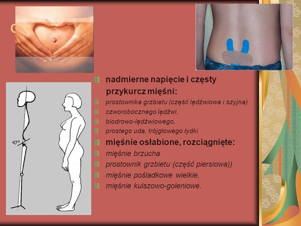 ciąża nadmierne napięcie i częsty przykurcz mięśni: