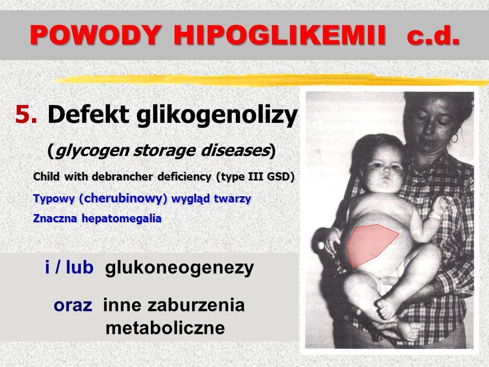 POWODY HIPOGLIKEMII c.d.
