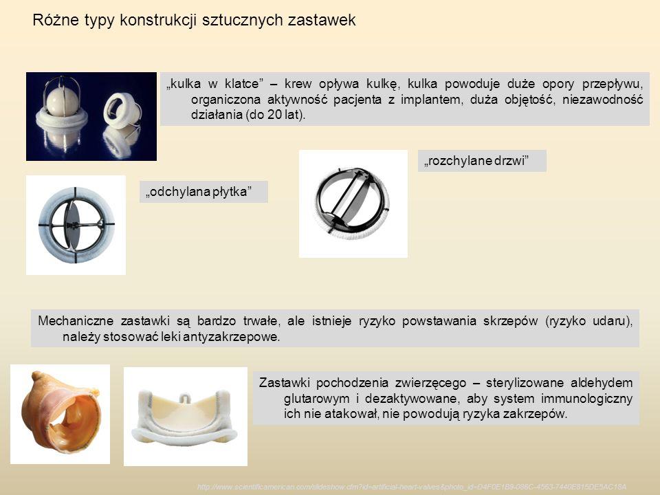 Różne typy konstrukcji sztucznych zastawek