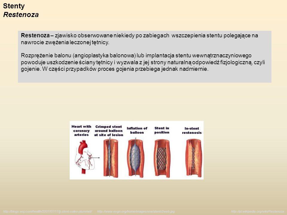 Stenty Restenoza. Restenoza – zjawisko obserwowane niekiedy po zabiegach wszczepienia stentu polegające na nawrocie zwężenia leczonej tętnicy.