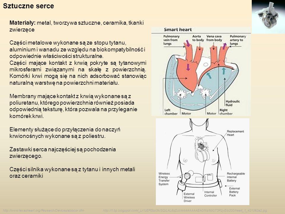 Sztuczne serce Materiały: metal, tworzywa sztuczne, ceramika, tkanki zwierzęce.