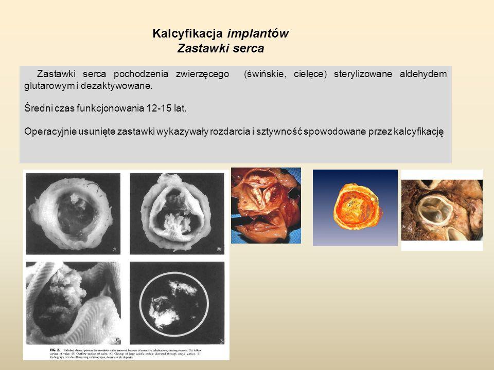 Kalcyfikacja implantów