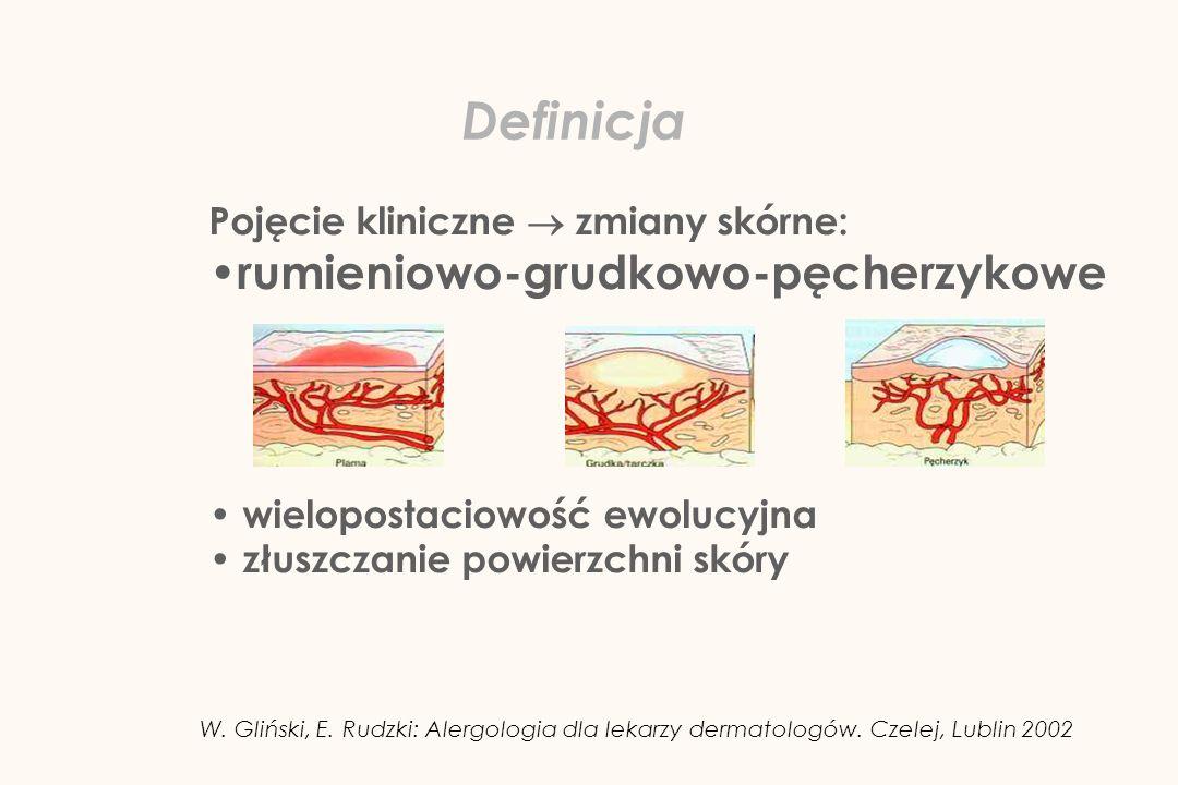 Definicja rumieniowo-grudkowo-pęcherzykowe