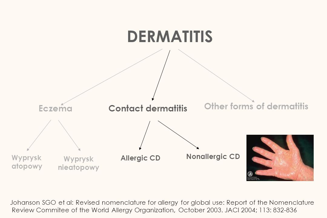 DERMATITIS Other forms of dermatitis Eczema Contact dermatitis