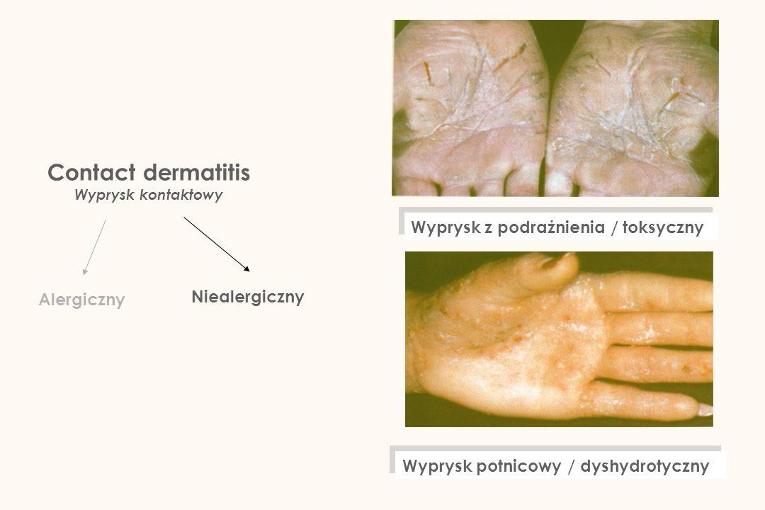 Contact dermatitis Wyprysk z podrażnienia / toksyczny Niealergiczny