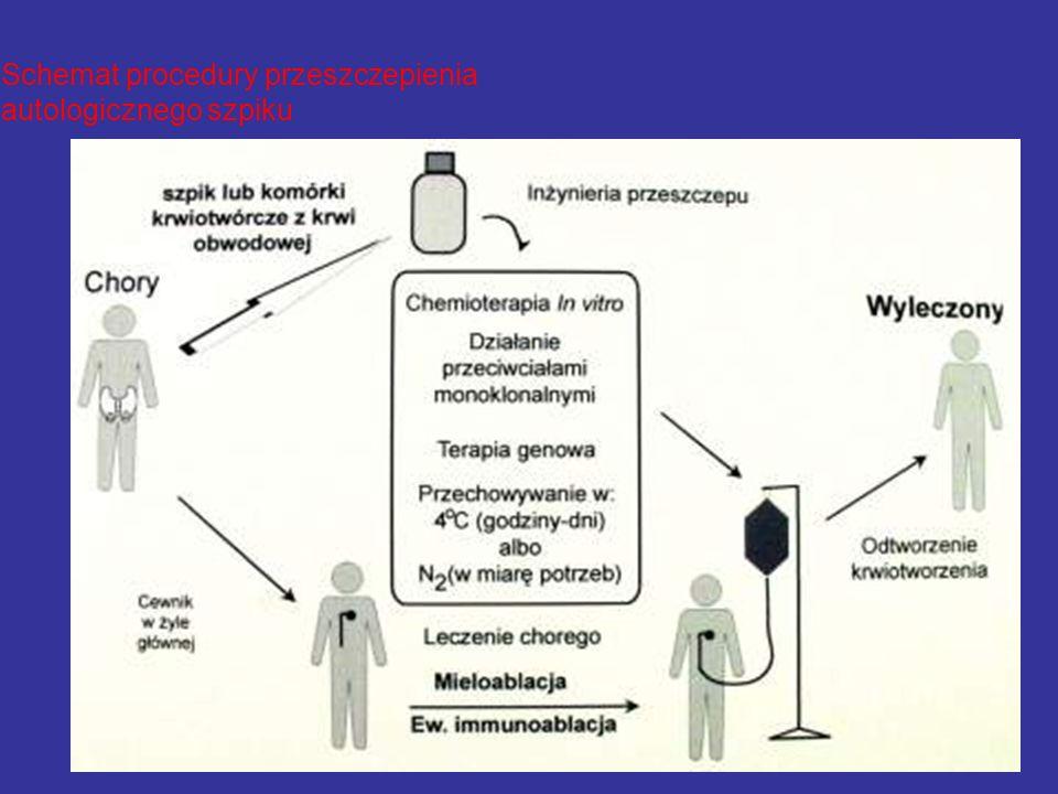 Schemat procedury przeszczepienia autologicznego szpiku