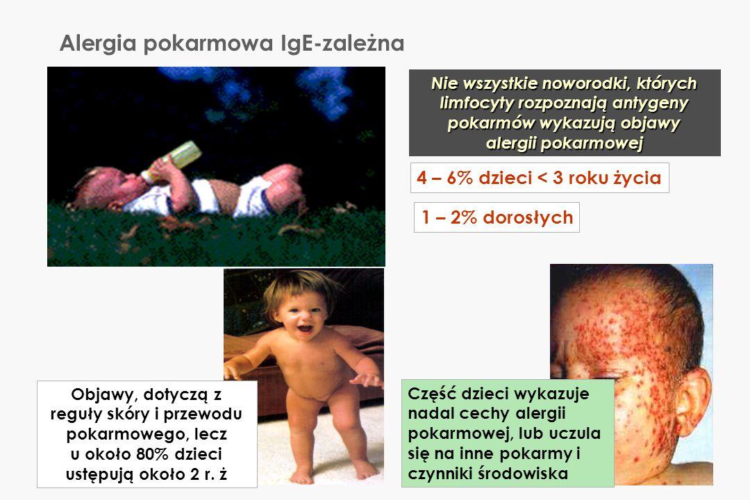 Alergia pokarmowa IgE-zależna
