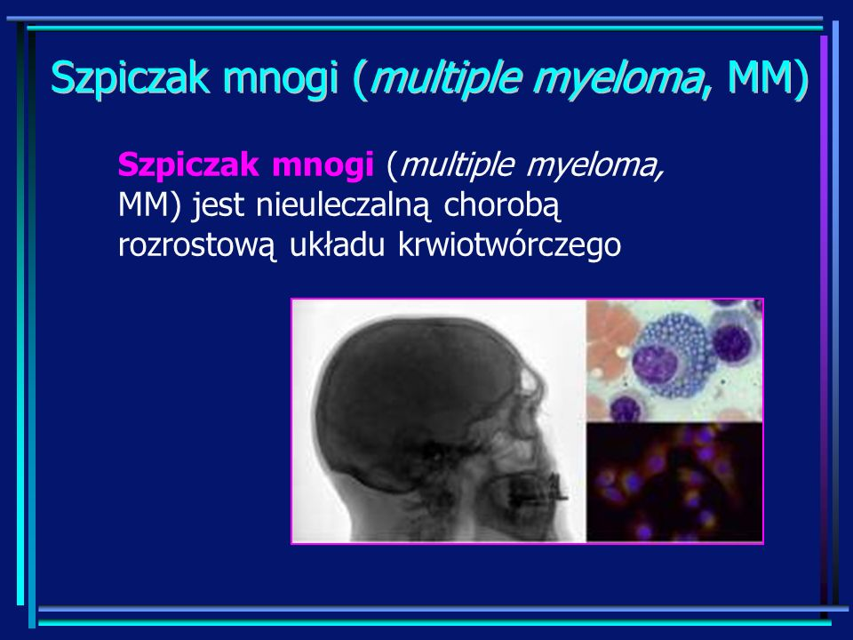 Szpiczak mnogi (multiple myeloma, MM)
