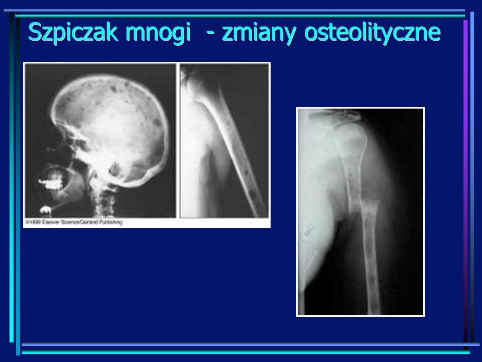 Szpiczak mnogi - zmiany osteolityczne