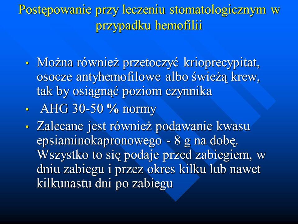 Postępowanie przy leczeniu stomatologicznym w przypadku hemofilii