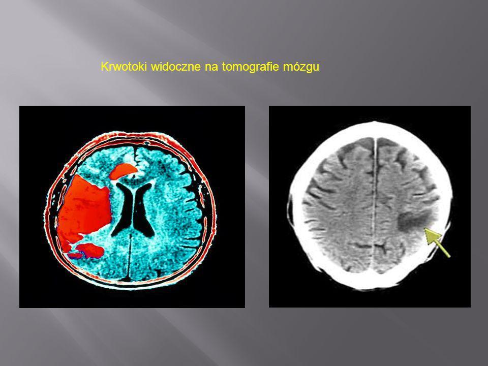 Krwotoki widoczne na tomografie mózgu