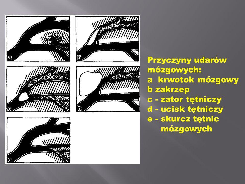 Przyczyny udarów mózgowych: a  krwotok mózgowy. b zakrzep. c - zator tętniczy. d - ucisk tętniczy.