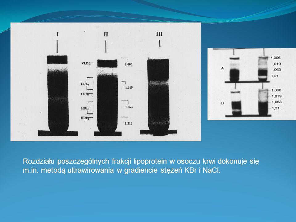 Rozdziału poszczególnych frakcji lipoprotein w osoczu krwi dokonuje się m.in.