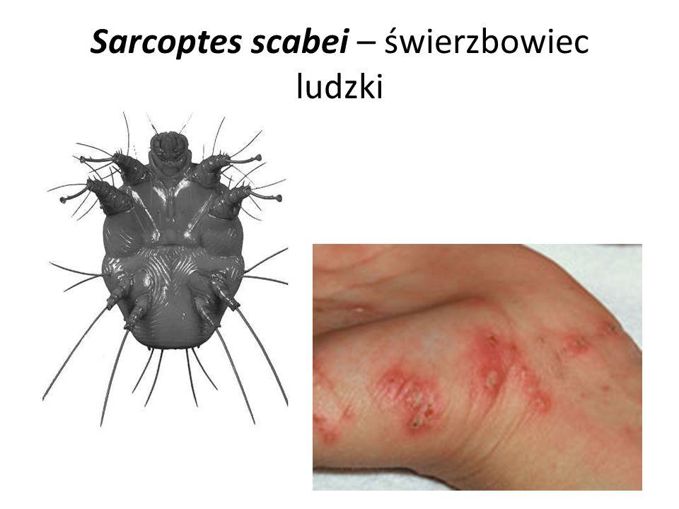 Sarcoptes scabei – świerzbowiec ludzki