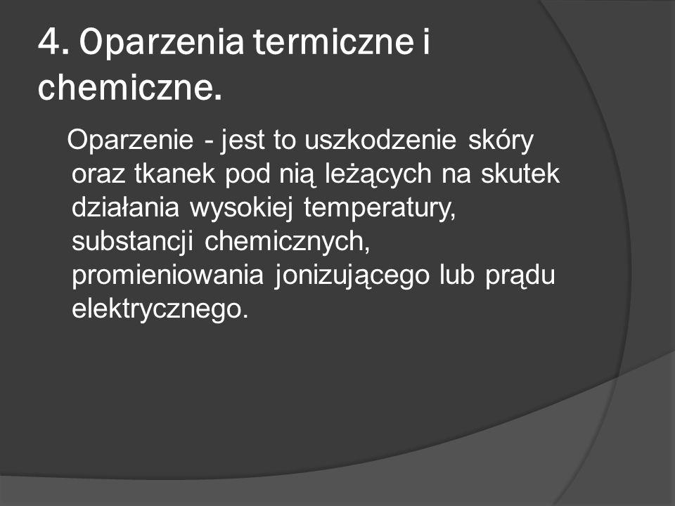 4. Oparzenia termiczne i chemiczne.