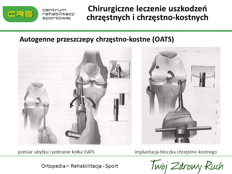 Chirurgiczne leczenie uszkodzeń chrzęstnych i chrzęstno-kostnych