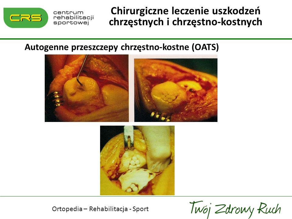 Autogenne przeszczepy chrzęstno-kostne (OATS)