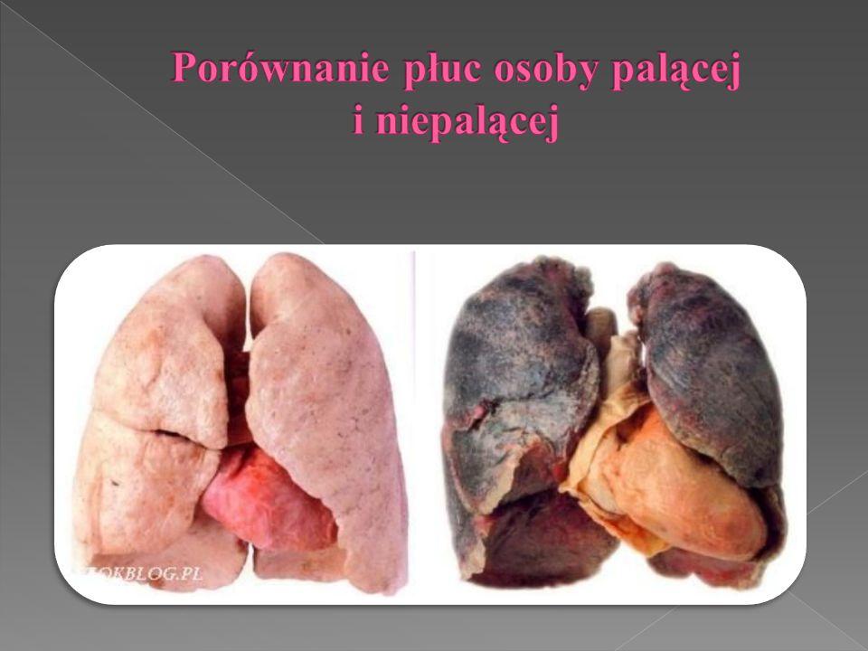 Porównanie płuc osoby palącej i niepalącej