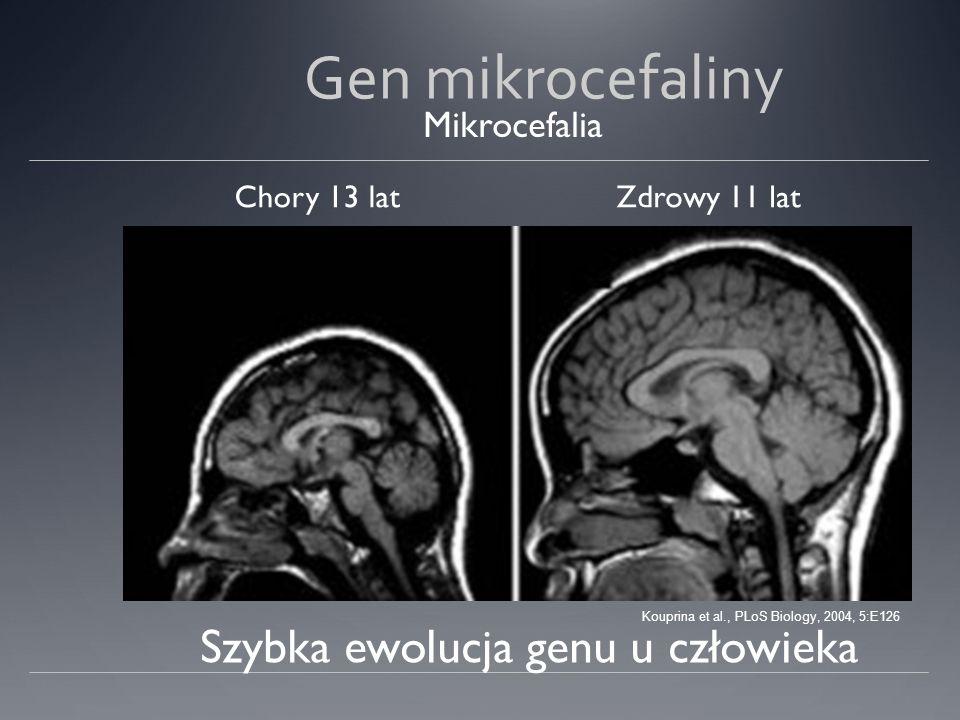 Gen mikrocefaliny Szybka ewolucja genu u człowieka Mikrocefalia