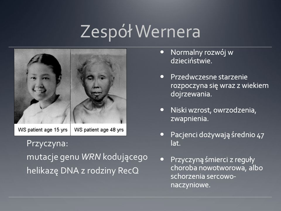 Zespół Wernera Przyczyna: mutacje genu WRN kodującego