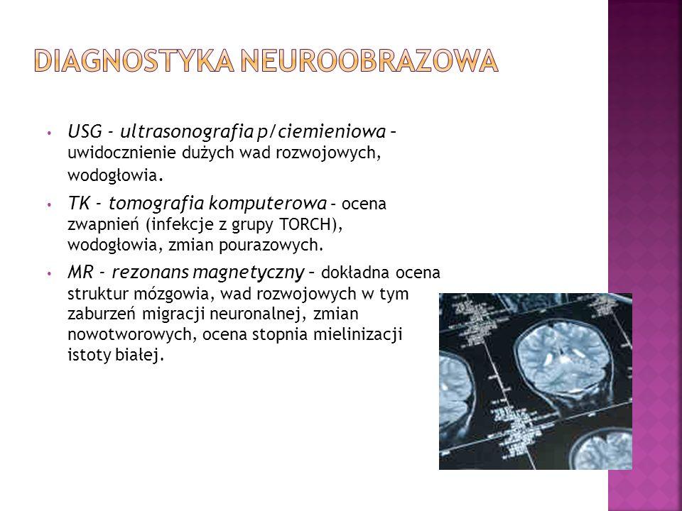 Diagnostyka neuroobrazowa